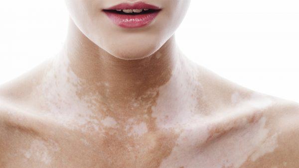 Появилась пигментация кожи? Как лечить в домашних условиях?