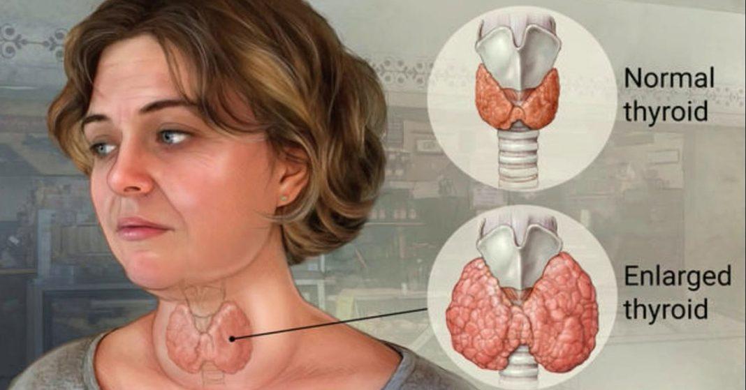 две формы щитовидная железа картинка где находится вид отличительные особенности